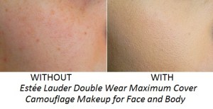 Without and With Estee Lauder Double Wear Maximum Cover Camouflage Makeup