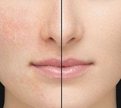 Skin Before After DHC Velvet Skin Coat Skin Perfecting Makeup Primer
