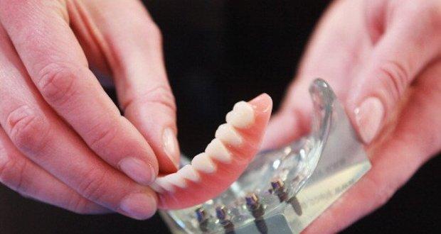 Зъбните протези