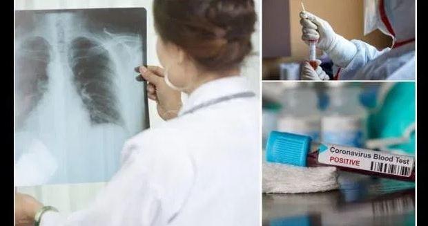 Потресаващ разказ на лекар от Спешното: ето как изглежда прегледа на болен от коронавирус