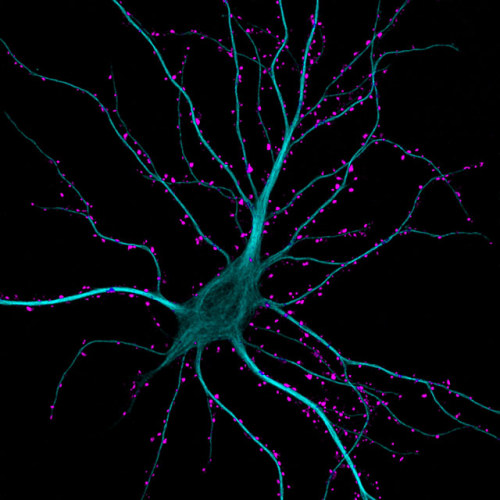 Hippocampal neuron receiving excitatory contacts (63x)      Dr. Kieran Boyle      University of Glasgow, Glasgow, Scotland, United Kingdom      Technique:Fluorescence, Confocal