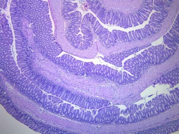 Perché i batteri intestinali sono essenziali per un sistema immunitario sano