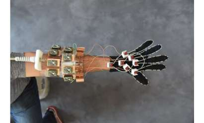MRI 'glove' provides new look at hand anatomy