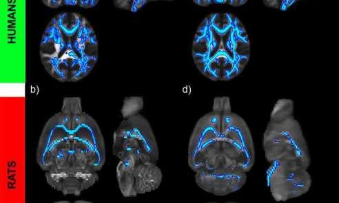 Image result for Alcohol Vs Brain Damage