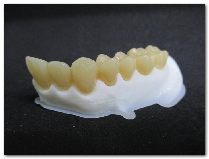 歯医者がフレキシブルフィラメント「PolyFlex」で歯列模型の歯肉部分を造ってみたよ