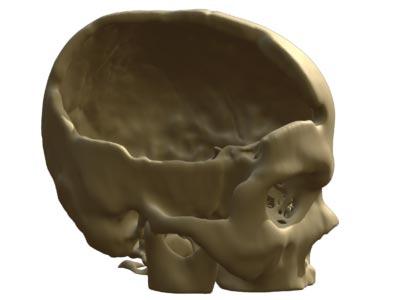 Rhino3D Medical Skull