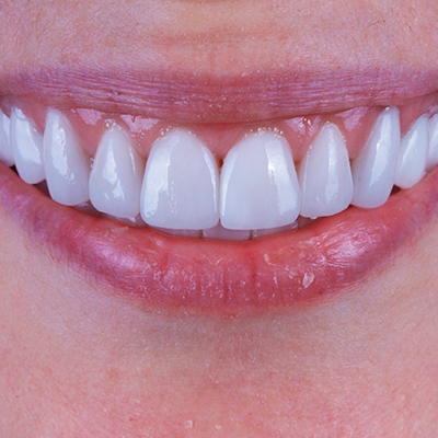 cosmetic-dentistry-400x400px