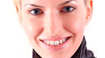 damon-clear-braces-sierra-vista-365x200