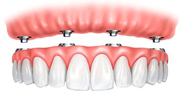 full-dentures-bisbee-365x200
