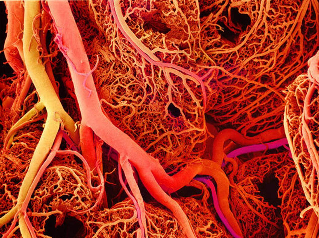 Researches Find Way To 3d Print Blood Vessels