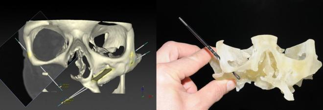 3D modelling surgical guides and using a 3D printed skull for surgical preplanning.