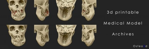 Osteo3d-Models-Store-3d-printing-Medical-Models-Banner02