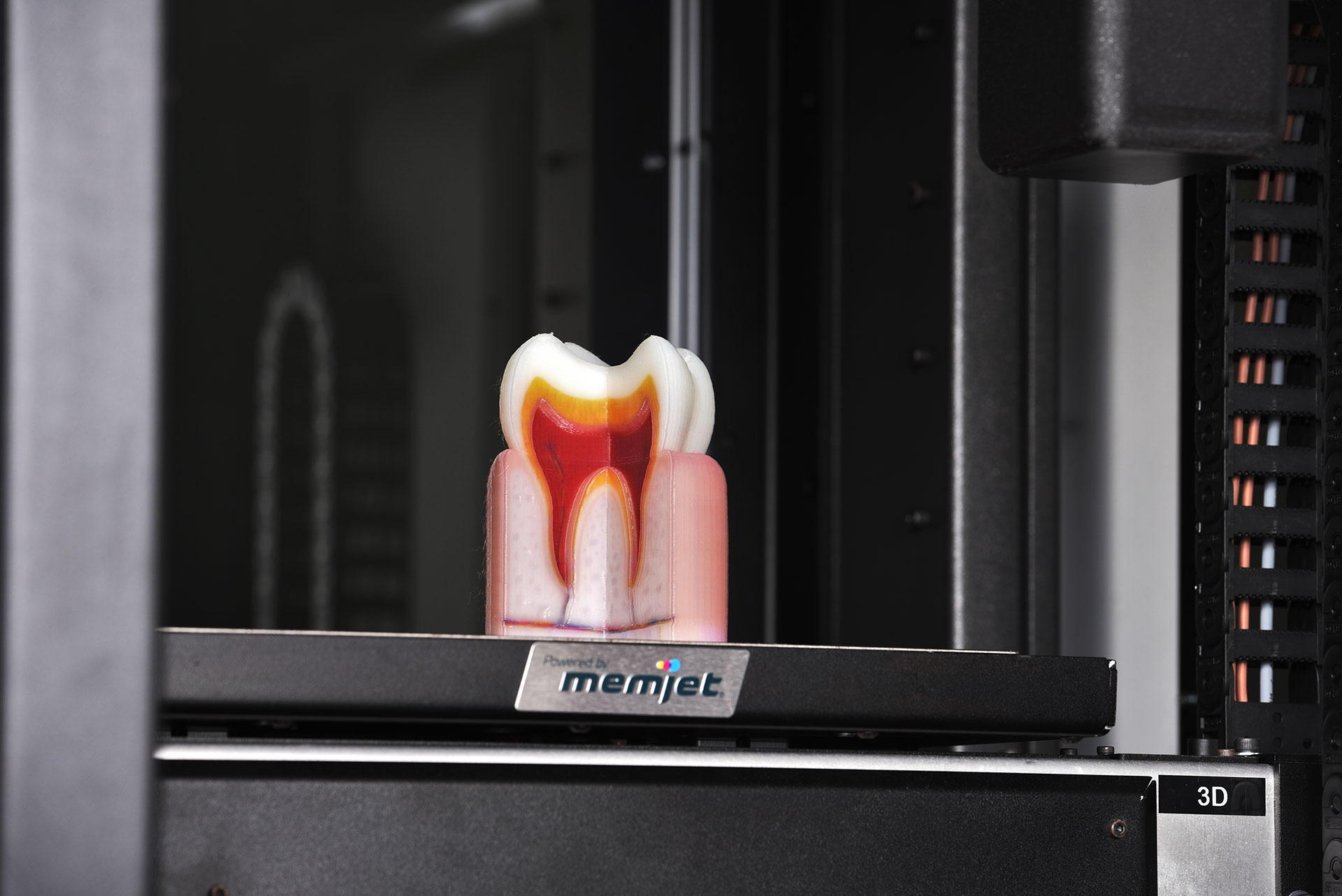 A tooth model on the OVE 3D printer printbed. Photo via OVE.