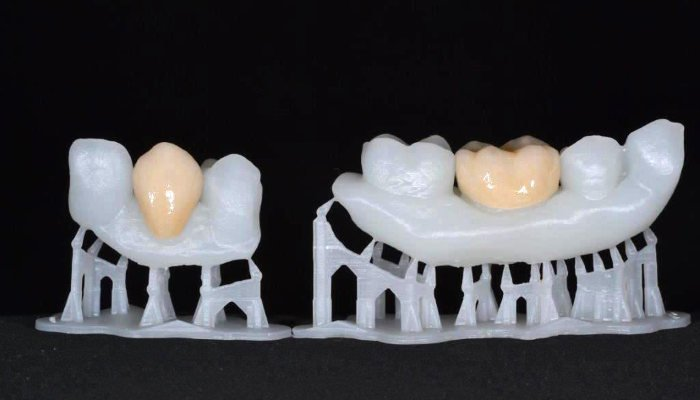 3D printed dental implants created by Formlabs