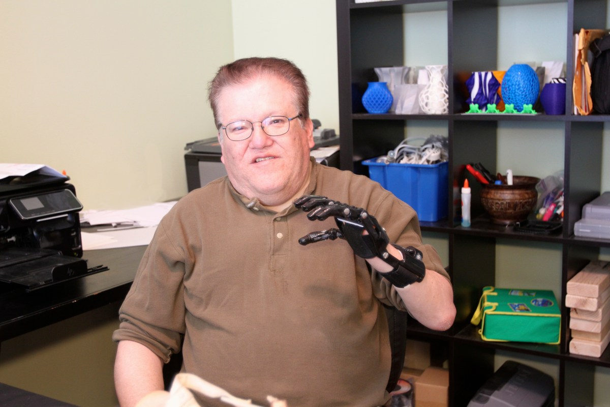 Man Compares His $50 3D Printed Hand to His $42K Prosthesis