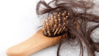 صورة افضل حل لعلاج تساقط الشعر وطرق إنبات البصيلات الجديدة