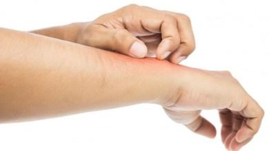 صورة افضل علاج لحساسية الجلد والالتهابات مع أهم الأعشاب لذوي البشرات الحساسة