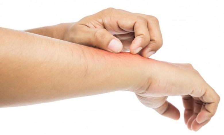 افضل علاج لحساسية الجلد