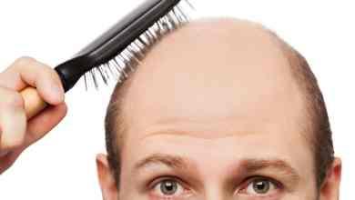 صورة العمر المناسب لزراعة الشعر – إليك أهم الأسئلة الشائعة قبل إجراء العملية
