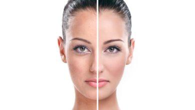 صورة تبيض الجسم والوجه في اسبوع بطرق طبيعية وآمنة تمامًا