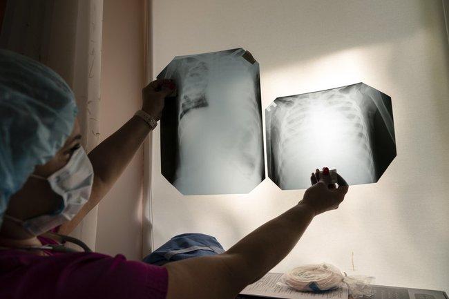 знимки легень
