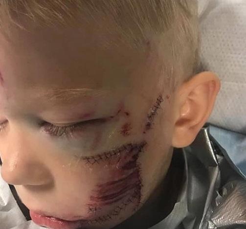 Хлопець зі швами після нападу собаки