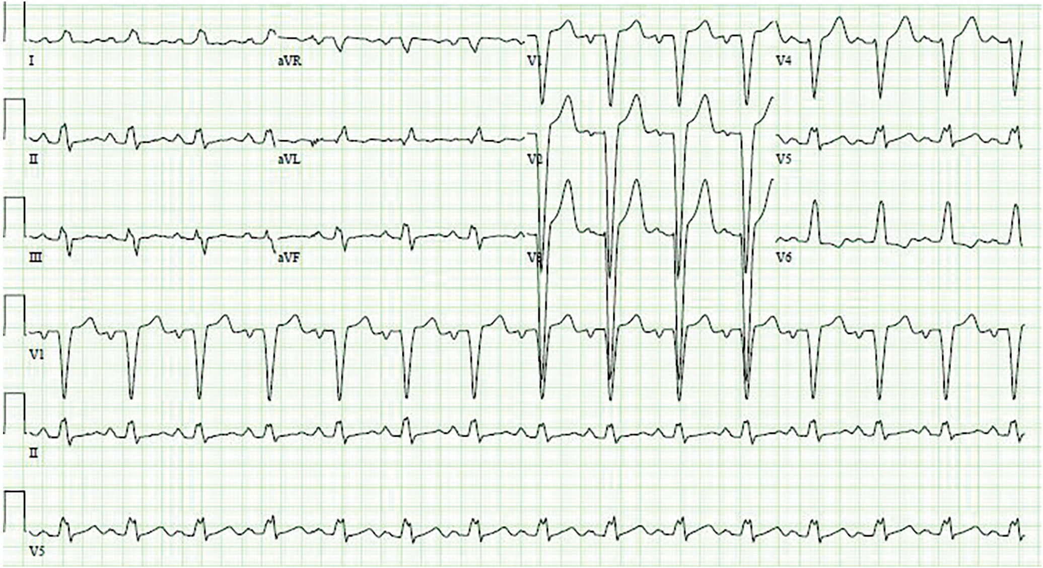 In Patients With Left Bundle Branch Block What S The Best Test For Cad Consult Qd