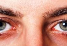 نمط الحياة الصحي يسهم في حماية العين من اللصوص المتربصين بها