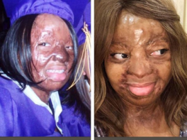 Sosoliso plane crash survivor, Kechi