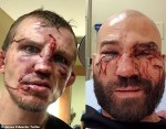 Bare-Knuckle Boxing: Opponents Show Off The Gruesome Injuries They Incurred On Their Faces [Photos/Video]