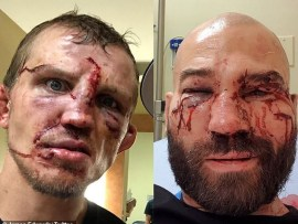 Bare-knuckle boxing: Opponents show off the gruesome injuries they incurred on their faces (Photos)