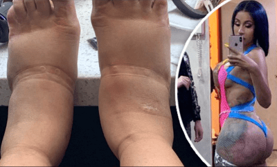 Cardi B shares a shocking picture of her massively swollen feet caused by