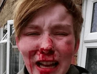 Teenage girl left with bloodied face after homophobic attack