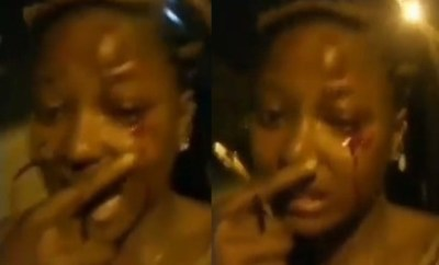 FUTA female student left with bloodied eye after being assaulted by police (video)