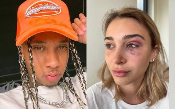 Update: Rapper Tyga arrested on suspicion of Domestic violence against ex-girlfriend Camaryn Swanson