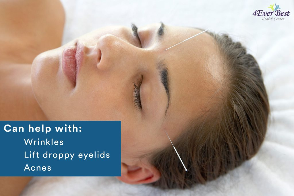 2 acupuncture needles on a woman's face