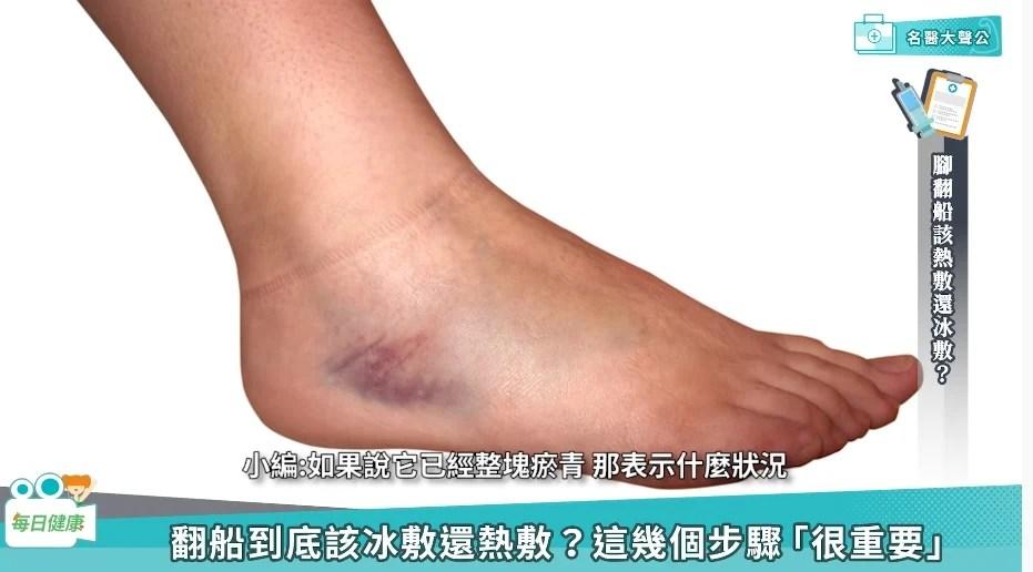 腳踝會「習慣性」狂翻船? 醫師教您扭傷急救處理|娛樂 - 四季線上4gTV
