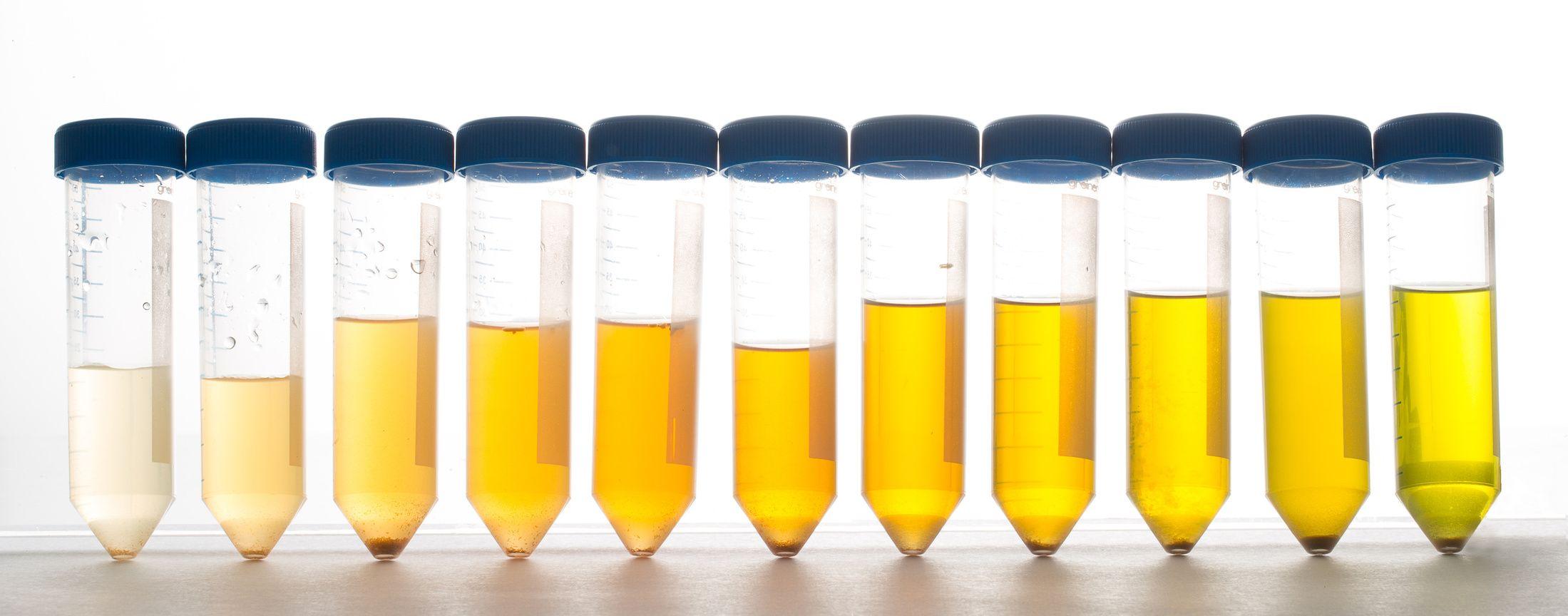 urin geschmack beeinflussen erotik com