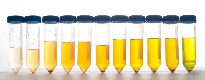 Elf Urin-Behälter