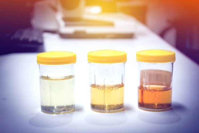 Urinbehälter mit Inhalt