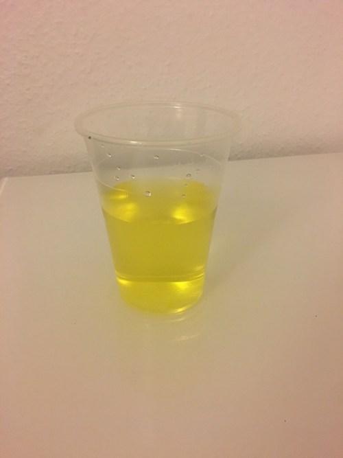 Urin in gold-gelber Farbe