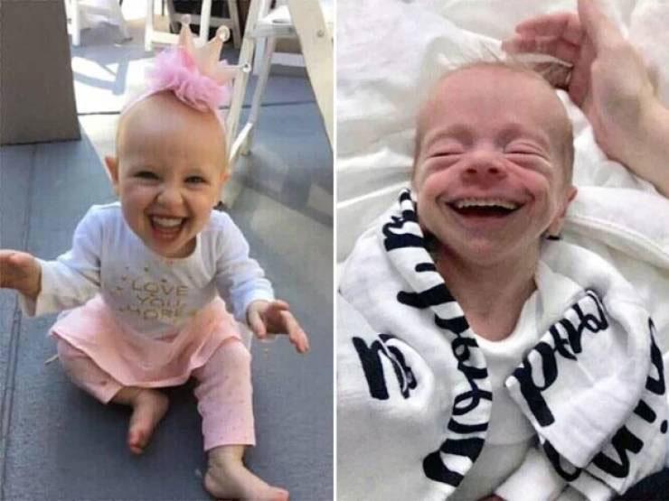 младенцы с зубами, если бы у младенцев были зубы, фото младенцев с зубами