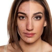 #169. Acne Symptoms | Types & Treatments -Christiana Stephen