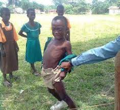 beating a female child - images 31 1 - Dangers of beating a female child and its possible complications
