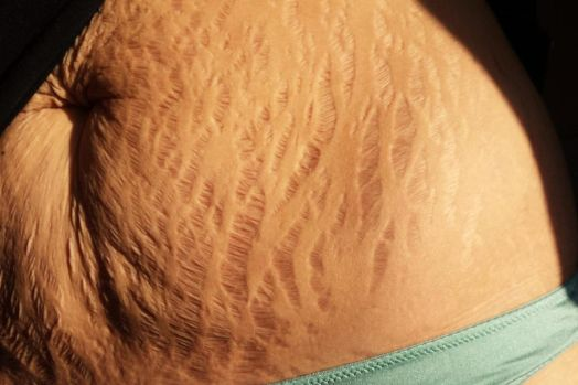 beauty: should stretch marks characterize magnificence principles? - 1526870 - Beauty: Should stretch marks determine beauty standards? beauty: should stretch marks characterize magnificence principles? - 1526870 - Beauty: Should stretch marks determine beauty standards?