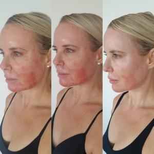 laser procedure for face
