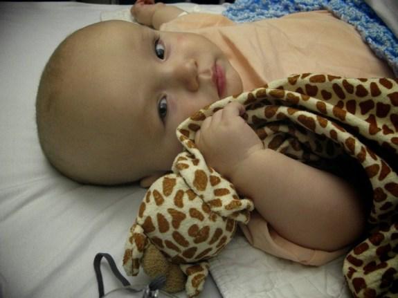 Josiah pre surgery