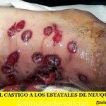 BESTIAL CASTIGO A LOS ESTATALES DE NEUQUÉN