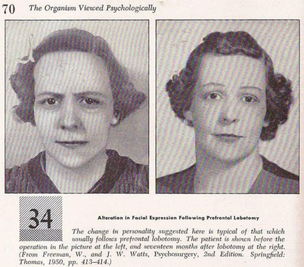 f64c942e7 Do you need a lobotomy  Just look at the results from these… – History