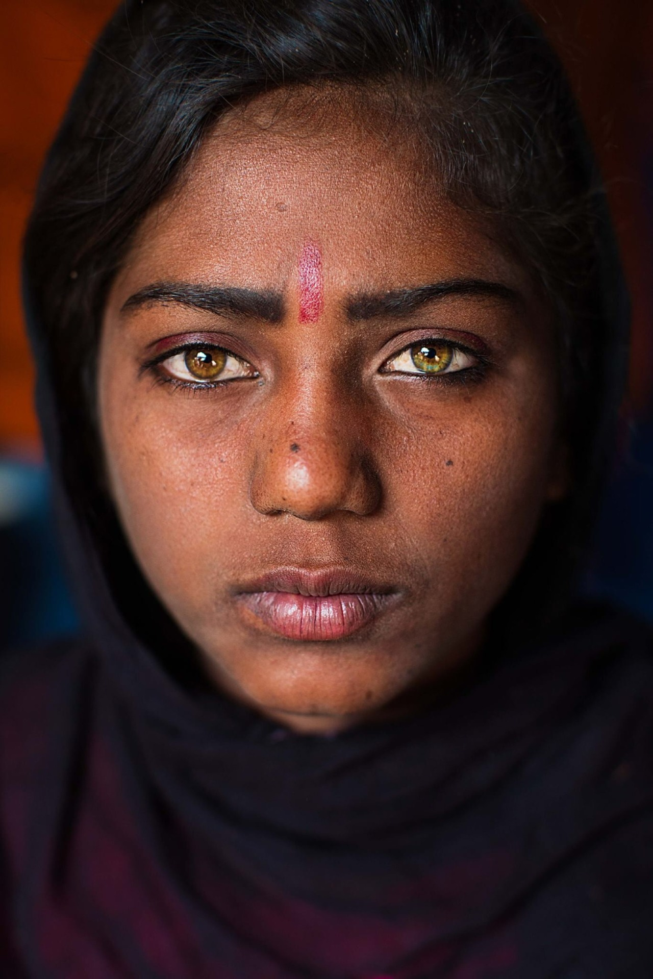 Sunita is one of the beautiful children that live in desert tent camps around Pushkar, India. Many tourists photograph her, because of her spectacular eyes, but a few are interested to help. She badly damaged her left hand when she was little. Her...